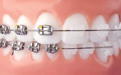ortodont Krško